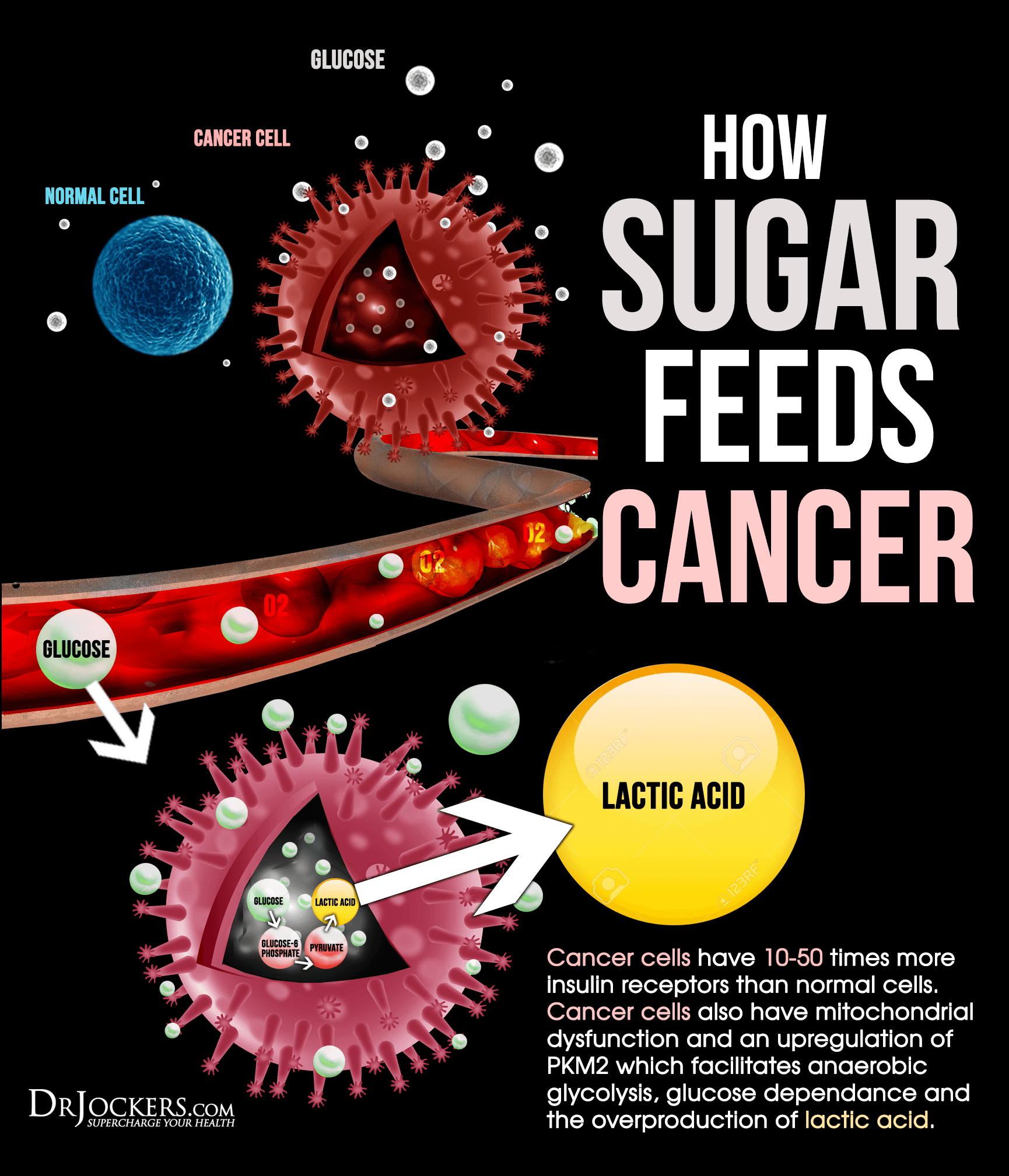 CancerFeedsOnSugar How to treat depression with foods?